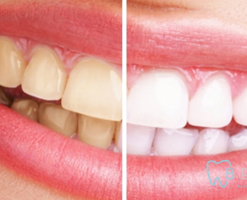 Blanqueamiento Dental Blog